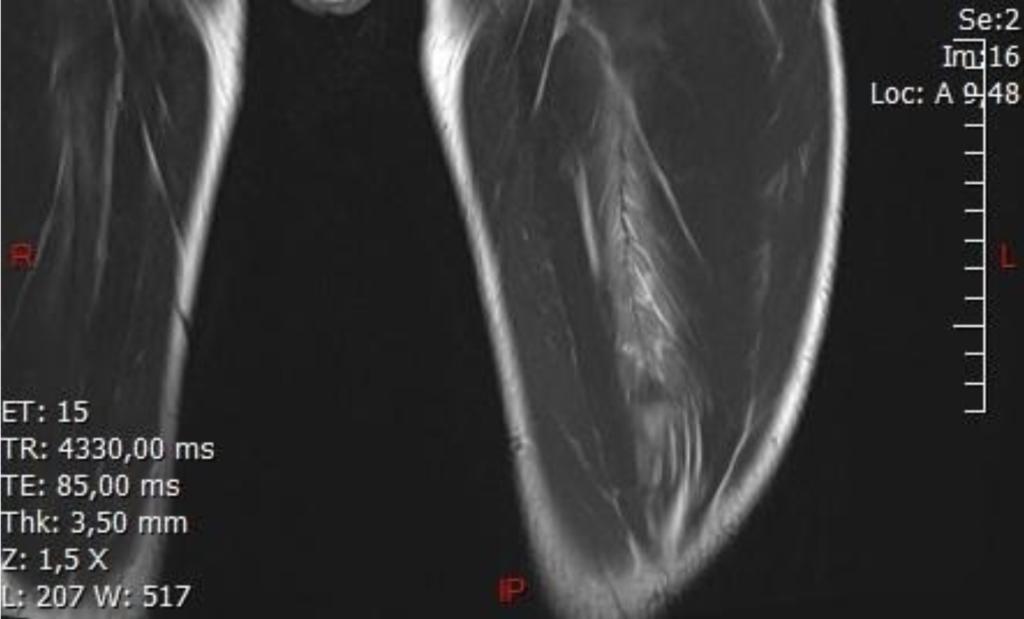 IRM de cuisse cas clinique 2 LFC