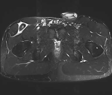 Coupe axiale à l'IRM